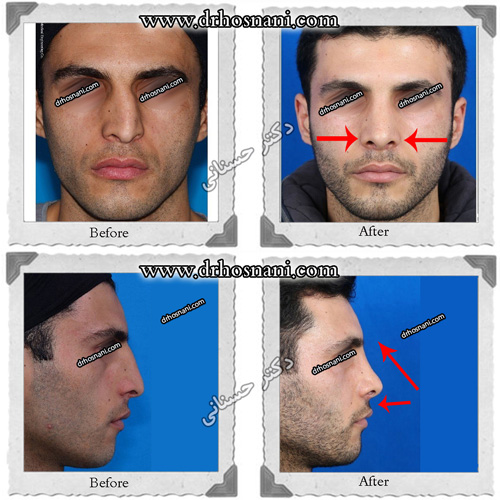 3d nose size reduction og