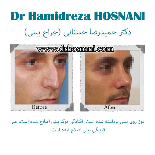 bony nose surgery og