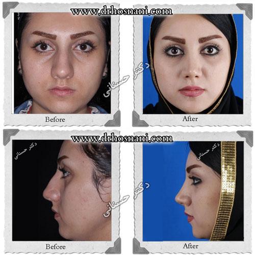 بینی غضروفی با پوست ضخیم