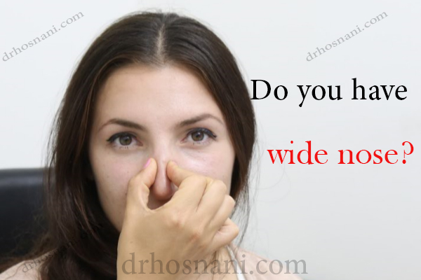 do you have a wide nose