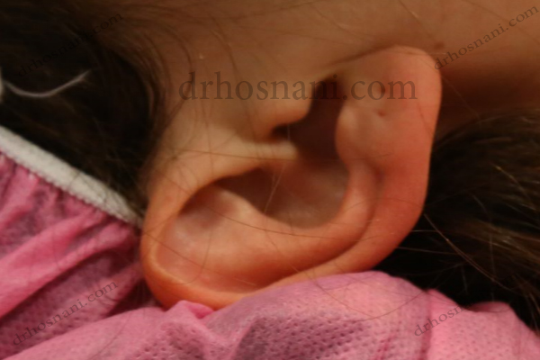 ear cartilage