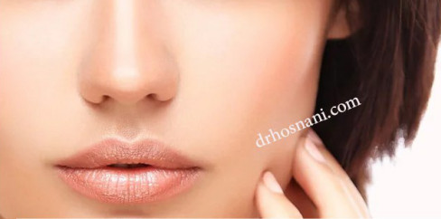 fleshy nose surgery og