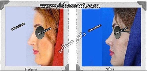 اصلاح افتادگی نوک بینی