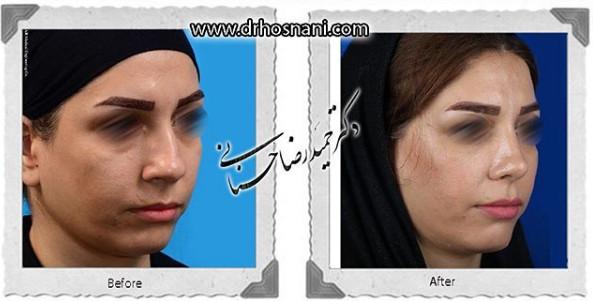 nose-surgery-1028