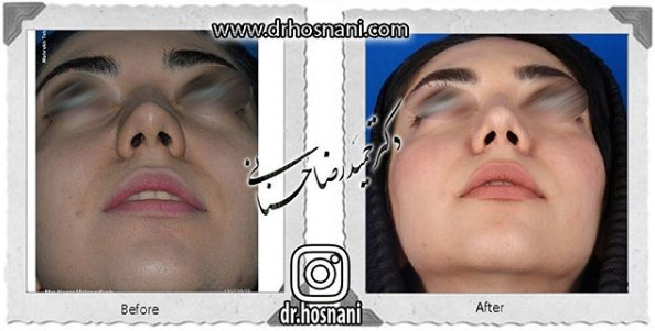 nose-surgery-1035