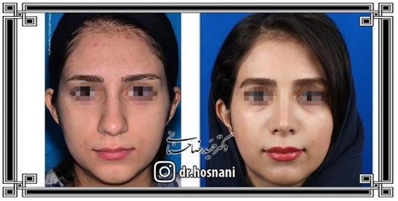 nose-surgery-1043