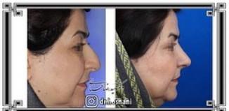 nose-surgery-1048