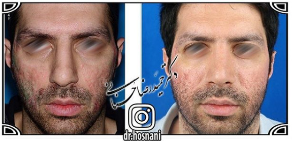 nose-surgery-1049