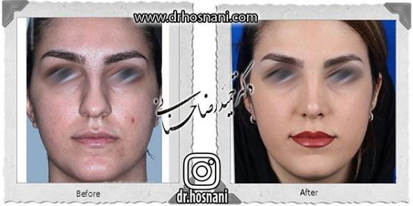 nose-surgery-1069