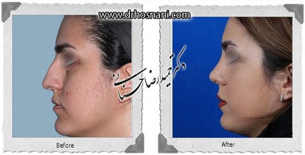 nose-surgery-1070