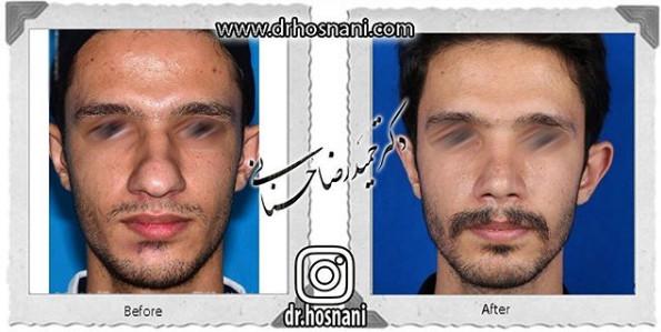 nose-surgery-1071