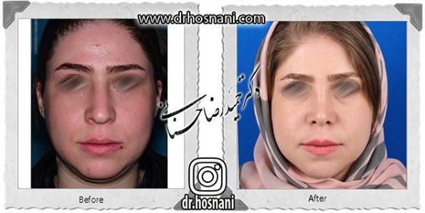 nose-surgery-1089