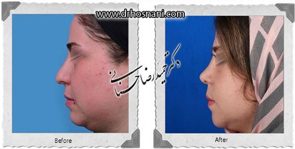 nose-surgery-1090