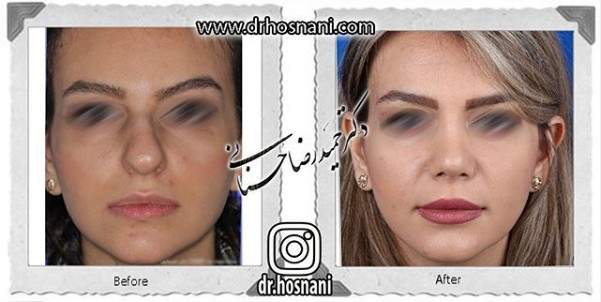 nose-surgery-1091