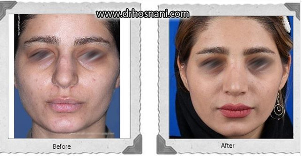 nose-surgery-1096