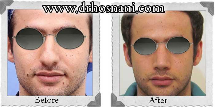 nose-surgery-110