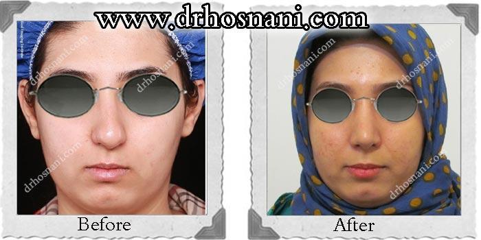 nose-surgery-138