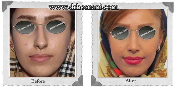 نمونه انحراف بینی و کجی بینی 2