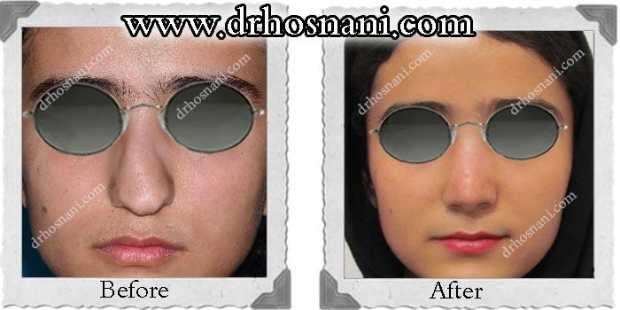 nose-surgery-146