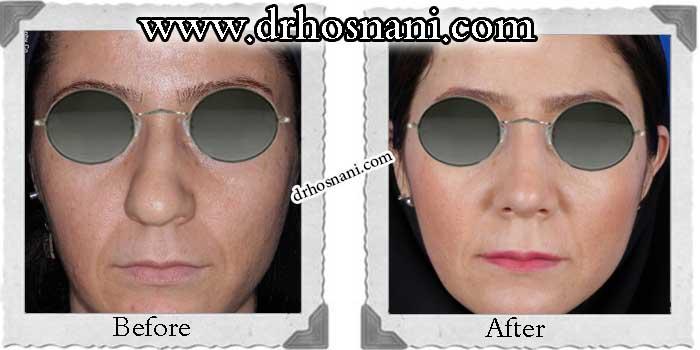 nose-surgery-149