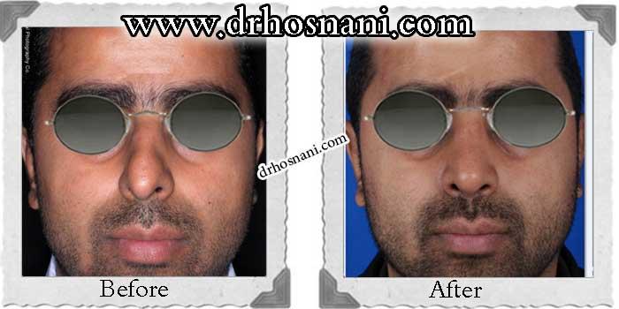 nose-surgery-155
