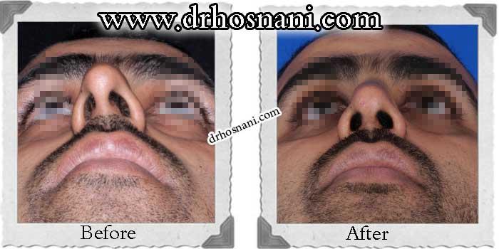 nose-surgery-160