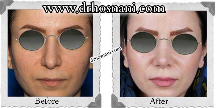 nose-surgery-161