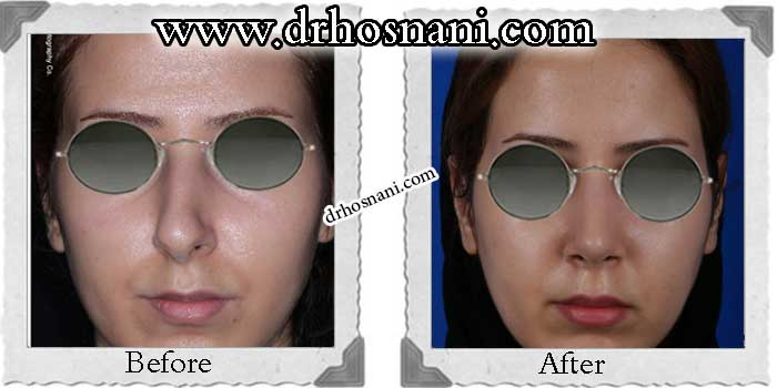 nose-surgery-167