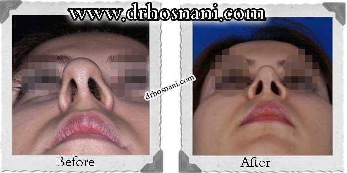 nose-surgery-169