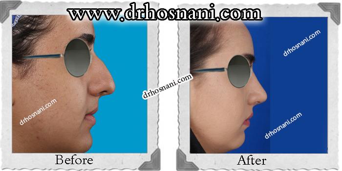 nose-surgery-172