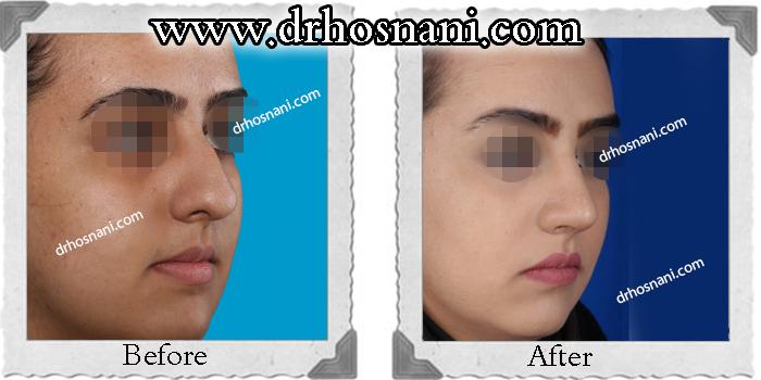 nose-surgery-173