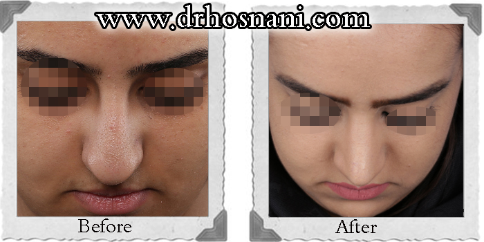 nose-surgery-174