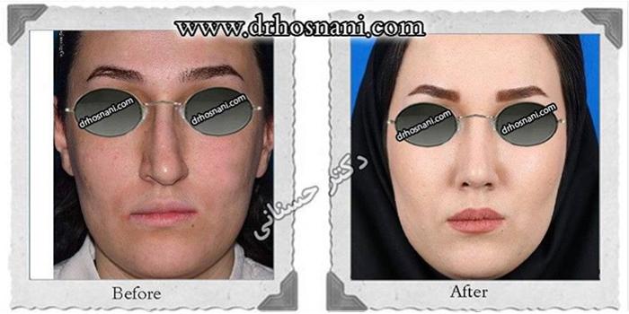 nose-surgery-178