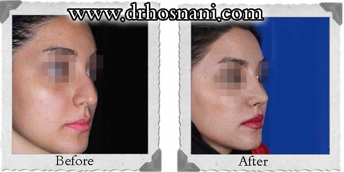 nose-surgery-179
