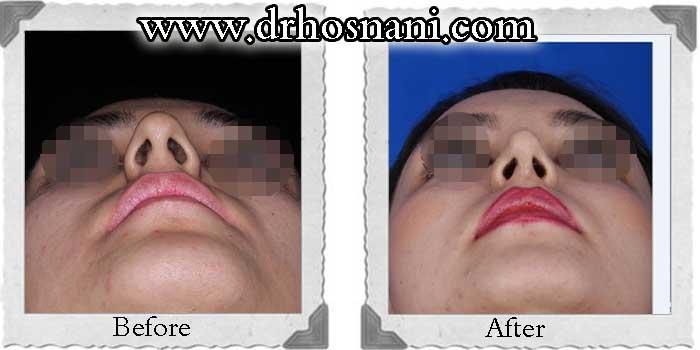 nose-surgery-180