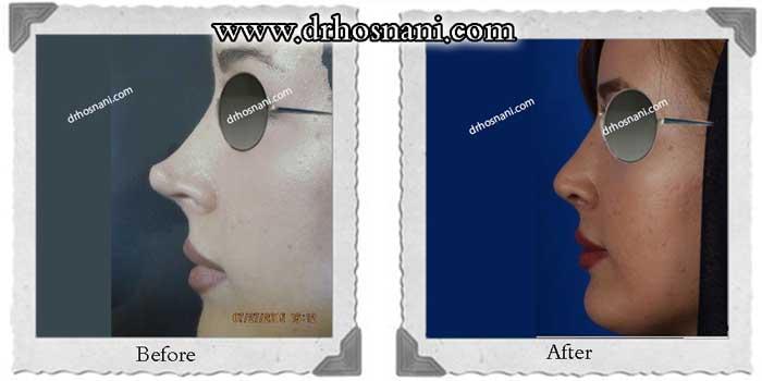 nose-surgery-199