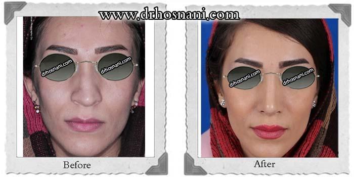 nose-surgery-210