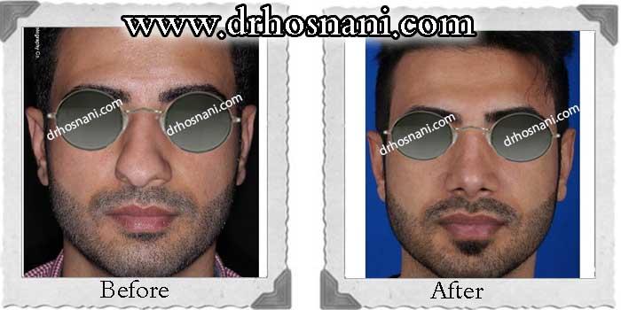 nose-surgery-220