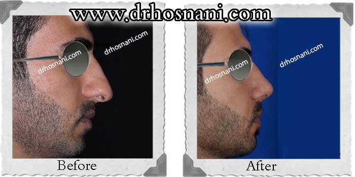 nose-surgery-221