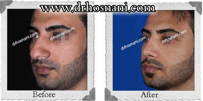 nose-surgery-222