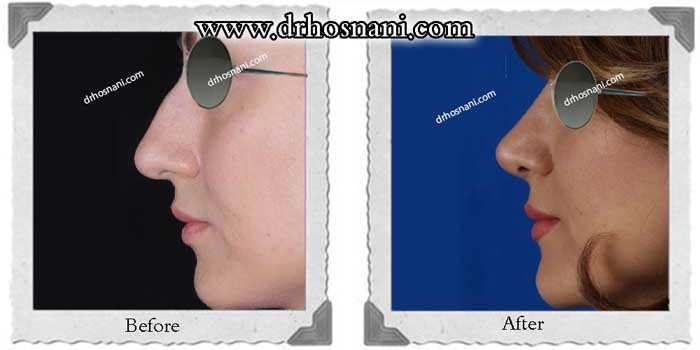 nose-surgery-227