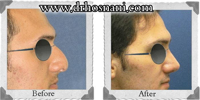 nose-surgery-23