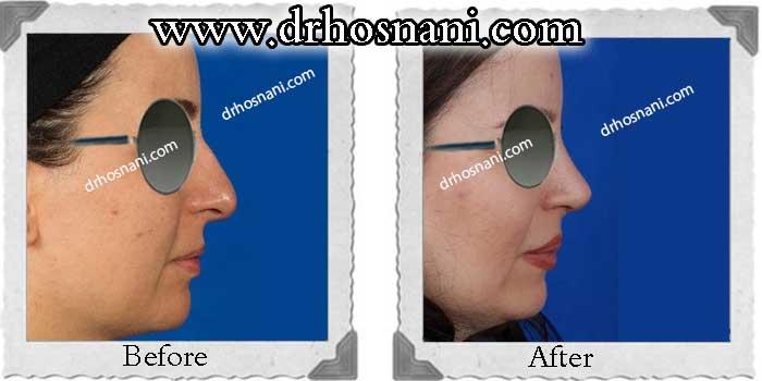 nose-surgery-230
