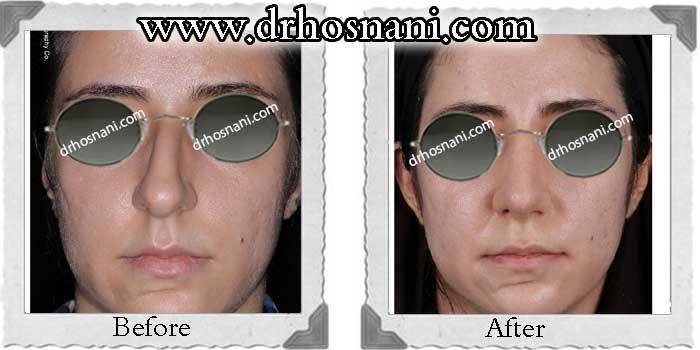 nose-surgery-231