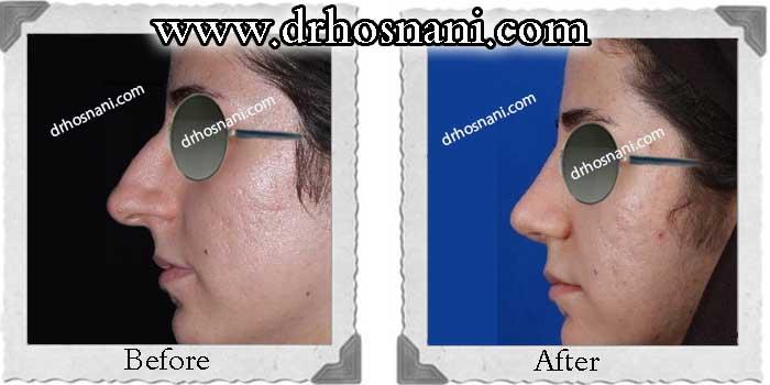 nose-surgery-232