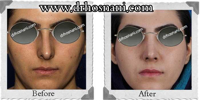 nose-surgery-239