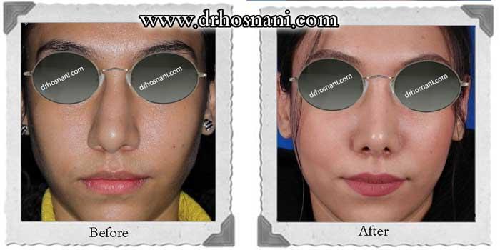 nose-surgery-241