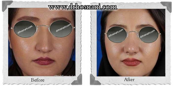nose-surgery-262