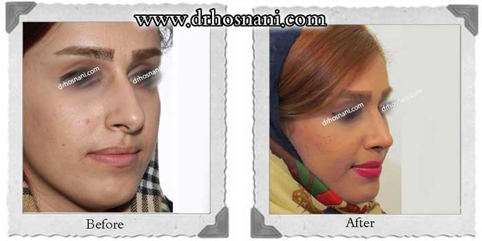 nose-surgery-277