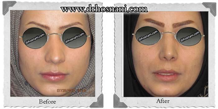 nose-surgery-278
